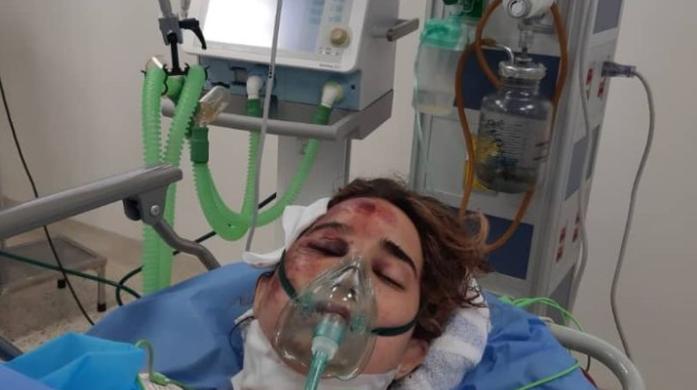 Ingrid Gomes, la estudiante hospitalizada por una golpiza de su exnovio, requiere apoyo económico
